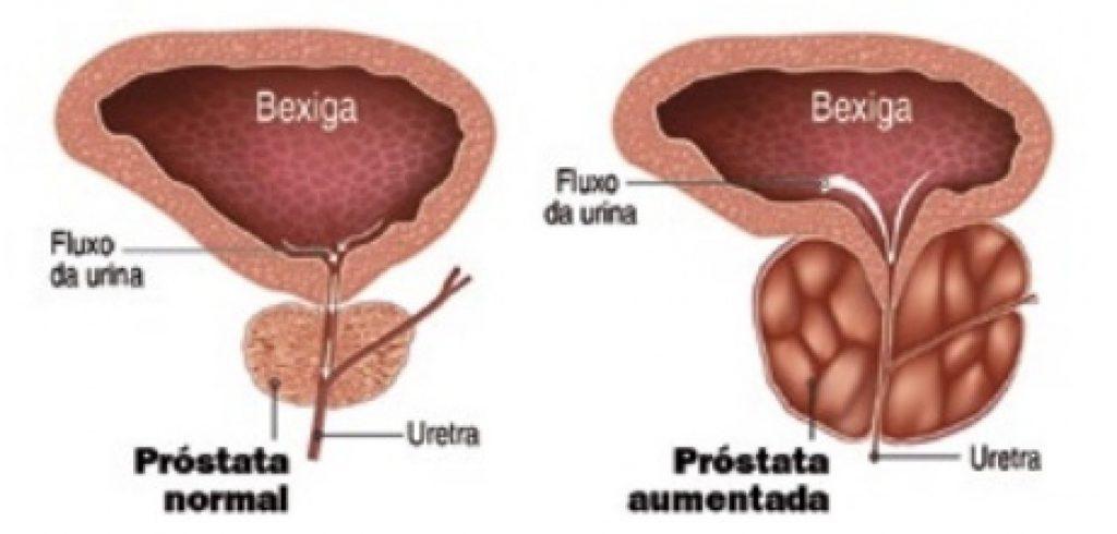 próstata inflamada